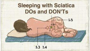 Schlafen mit Ischias